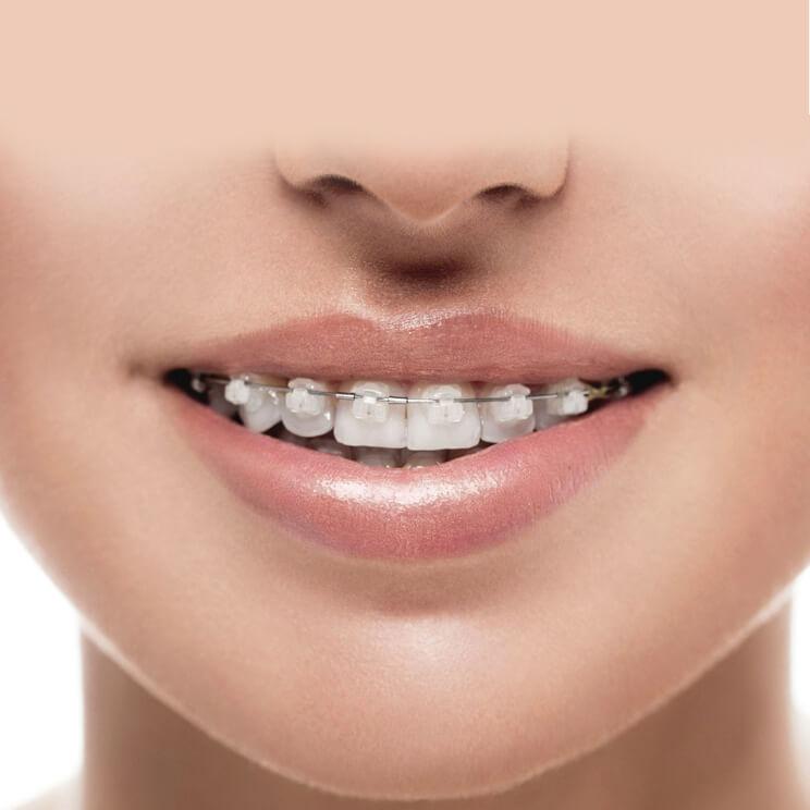 исправление прикуса керамическими брекетами Damon в Волгограде в стоматологии ДАША