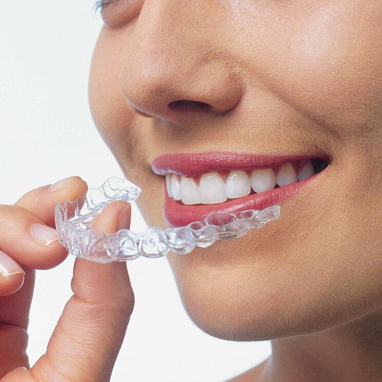 исправление прикуса невидимыми элайнерами в Волгограде в стоматологии ДАША