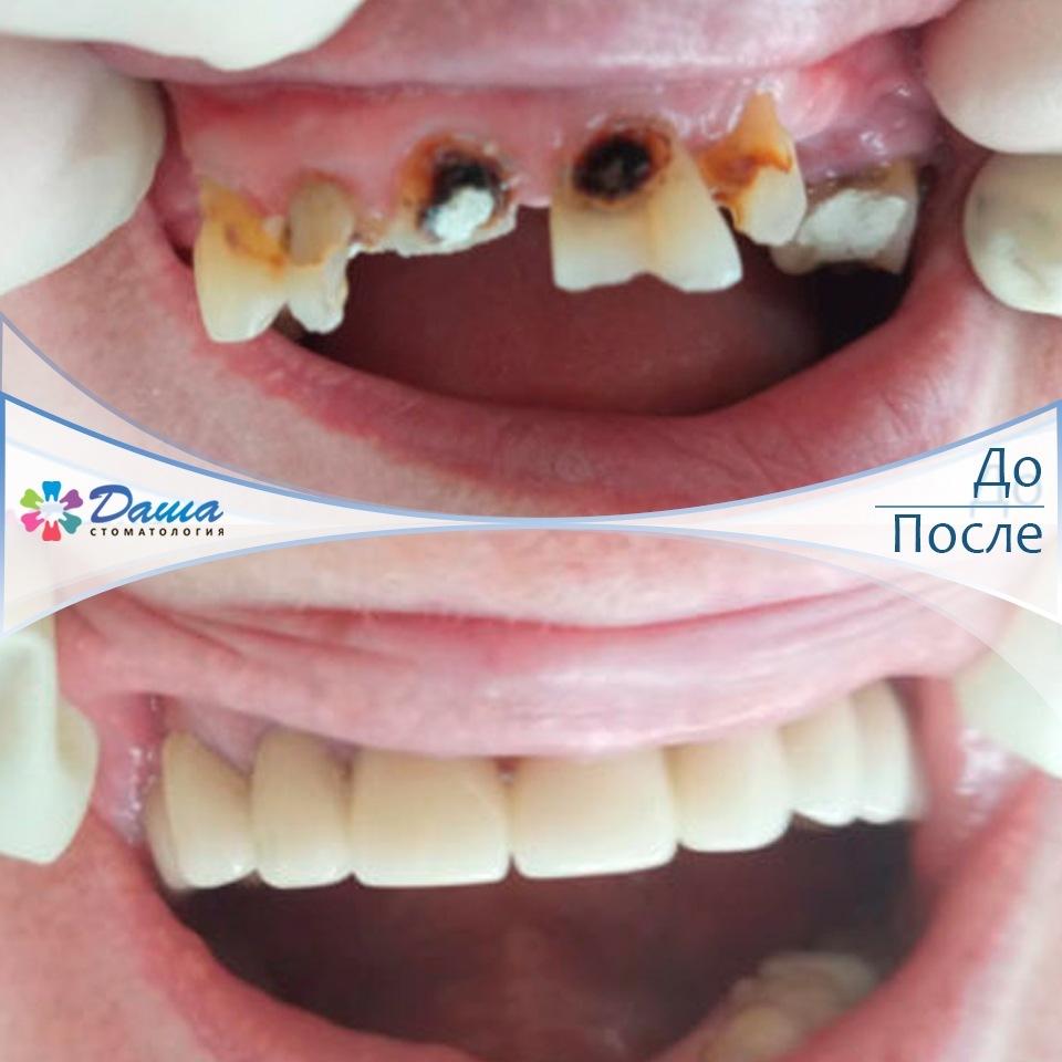 протезирование зубов металлокерамическими коронками и штфитово-культевыми вкладками
