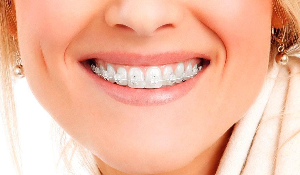 исправление прикуса керамическими брекетами Damon Clear в Волгограде в стоматологии ДАША на Спартановке