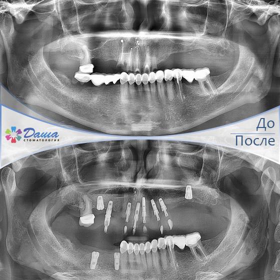 одномоментная имплантация в Волгограде в стоматологии ДАША на Спартановке