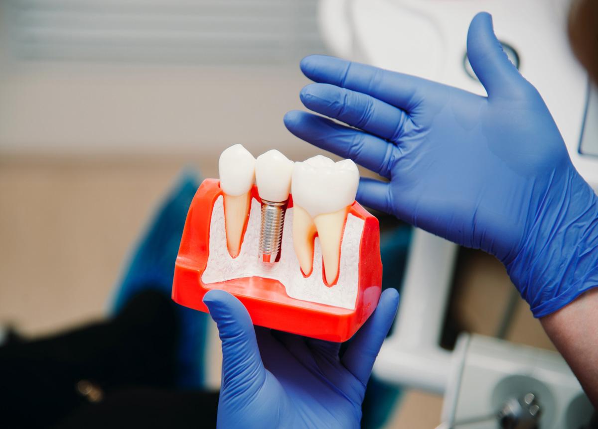 имплантация зубов в Волгограде в стоматологии ДАША