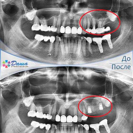 одномоментная имплантация, открытый синус-лифтинг и постановка двух дентальных имплантатов в стоматологии ДАША в Волгограде