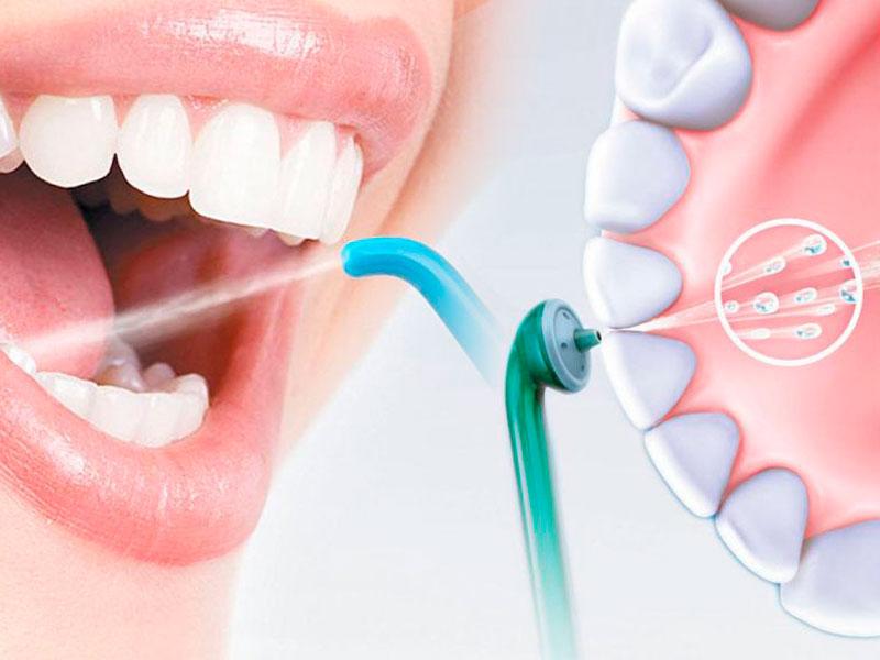 профессиональная гигиена полости рта в стоматологии ДАША в Волгограде по адресу ул. Кастерина, 5
