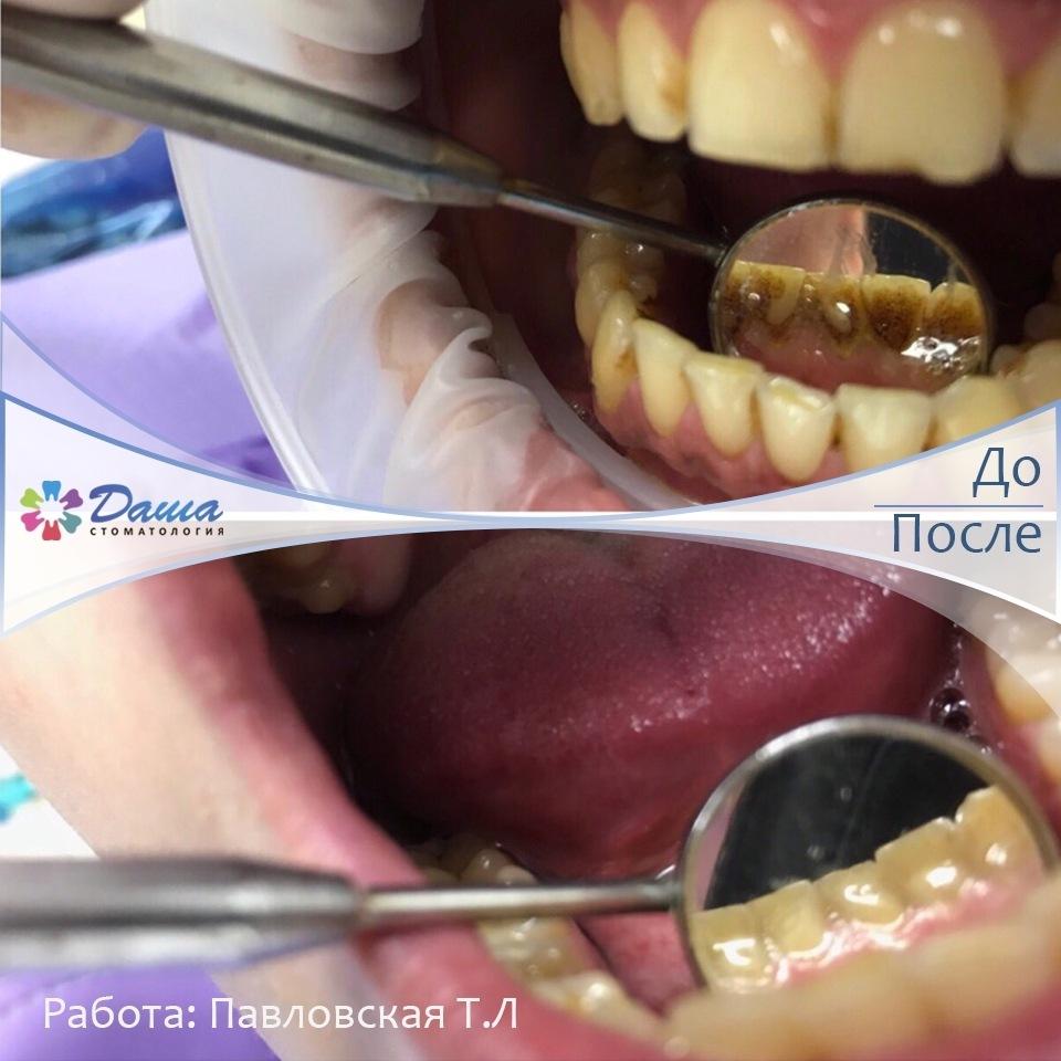 удаление зубного камня и налета в Волгограде в стоматологии ДАША работа главного врача Павловской Татьяны Любомировны