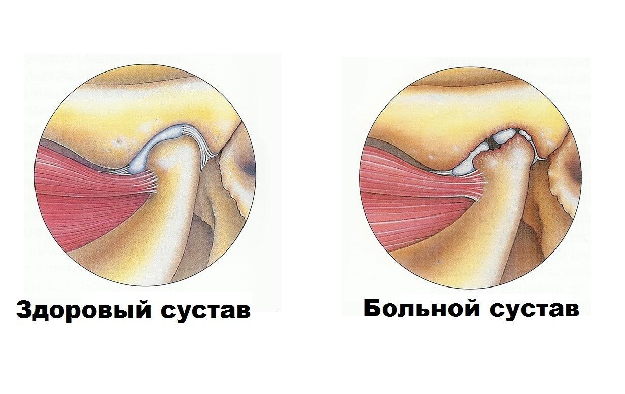 изображение здорового и больного височного нижнечелюстного сустава