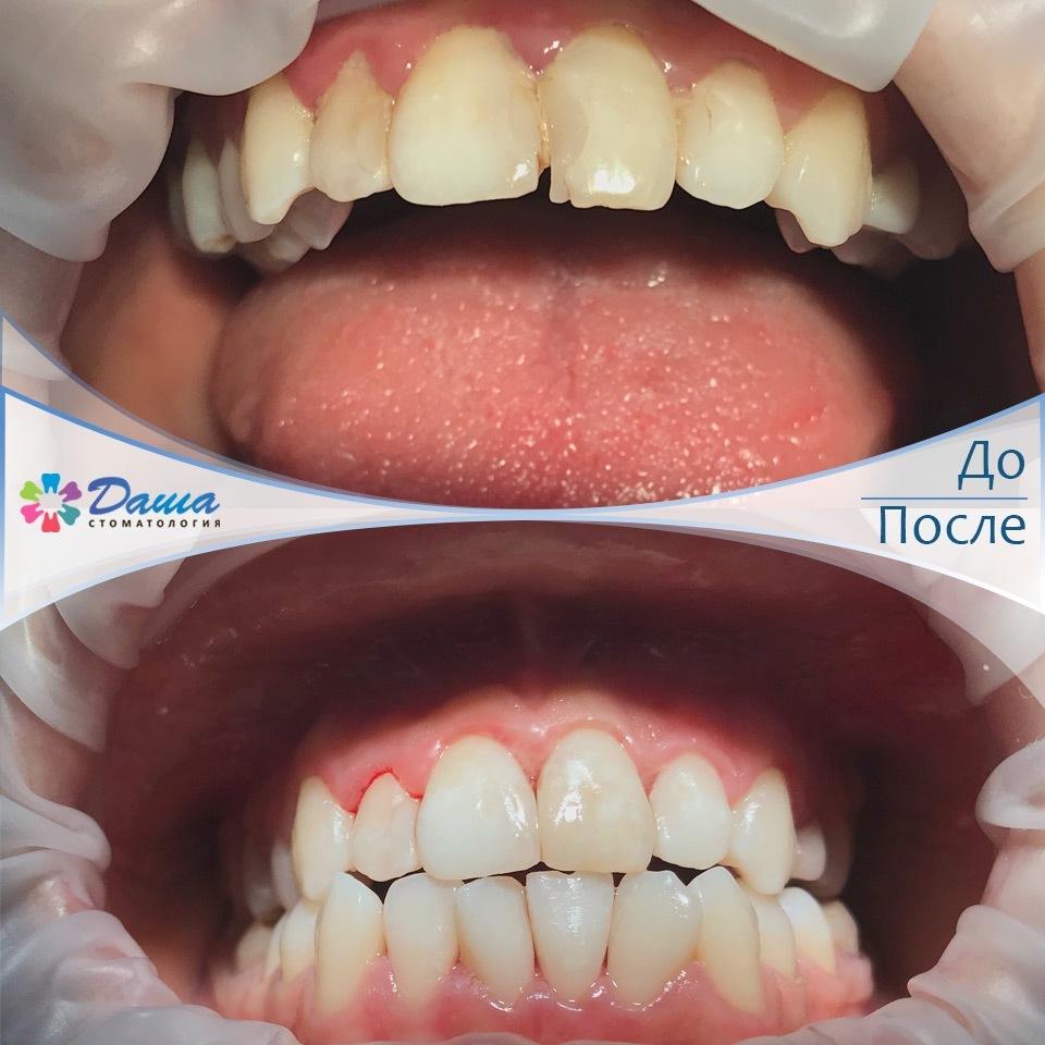профессиональная гигиена полости рта в стоматологии ДАША работа врача Кияшкина А.А.