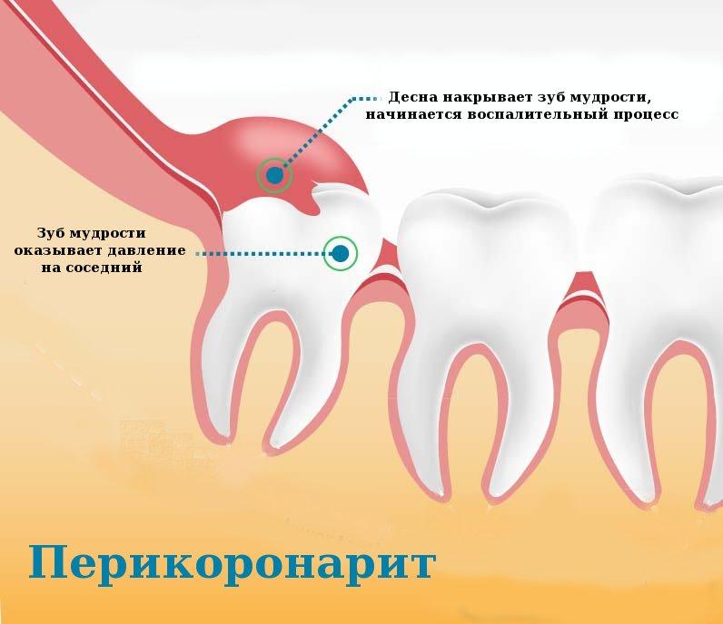 причины необходимости удаления зуба мудрости