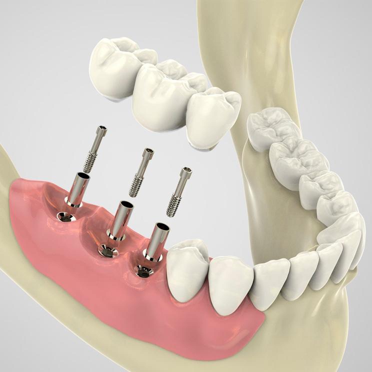 протезирование на имплантах в Волгограде в стоматологии ДАША на Спартановке
