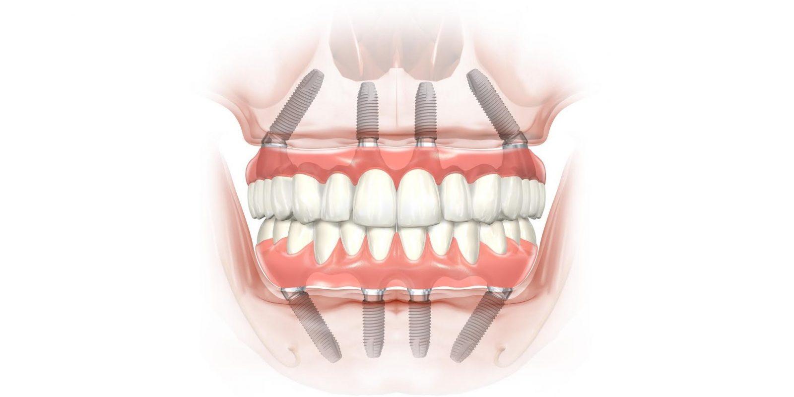 имплантация all on 4 в Волгограде в стоматологической клинике ДАША