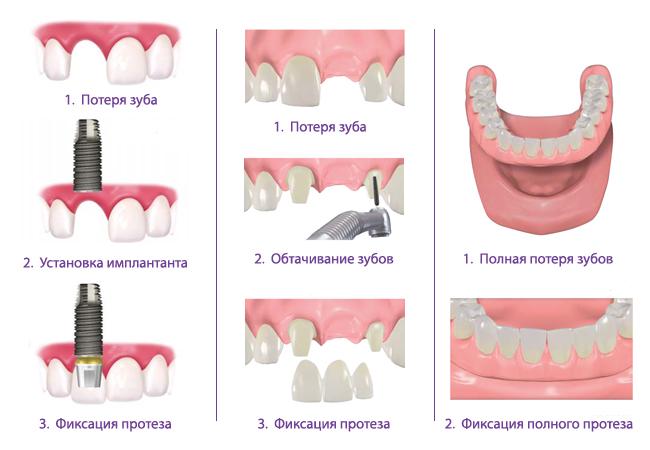 сравнение преимуществ методов восстановления целостности зубного ряда
