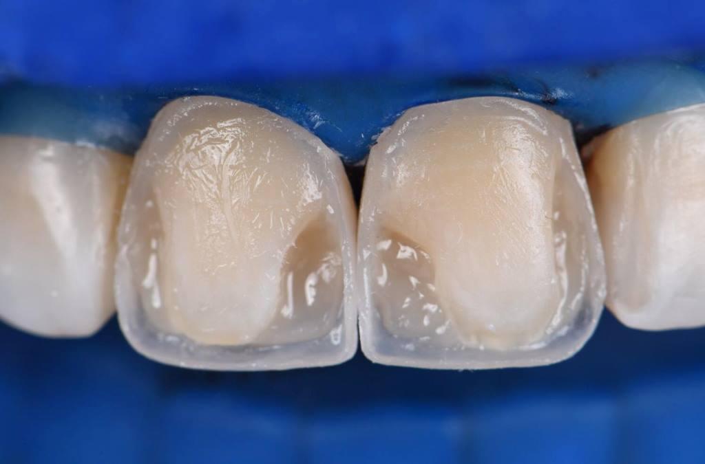восстановление формы зуба композитными материалами в Волгограде в стоматологии ДАША