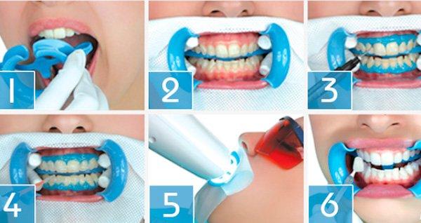 этапы отбеливания зубов в Волгограде в клинике ДАША