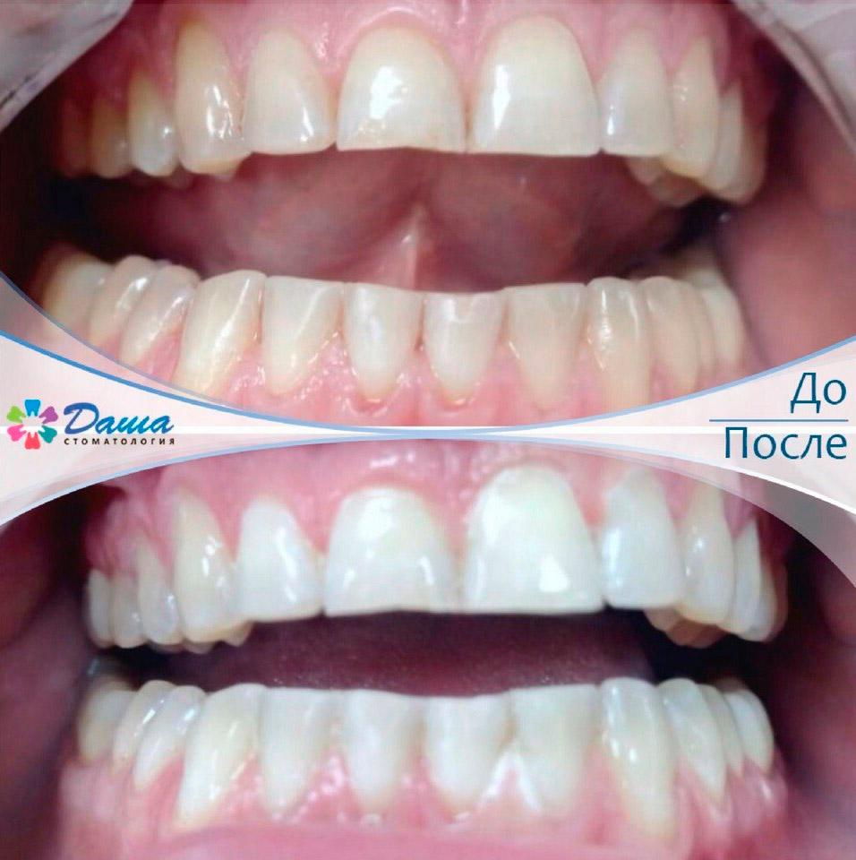 результат отбеливания зубов в Волгограде в стоматологии ДАША
