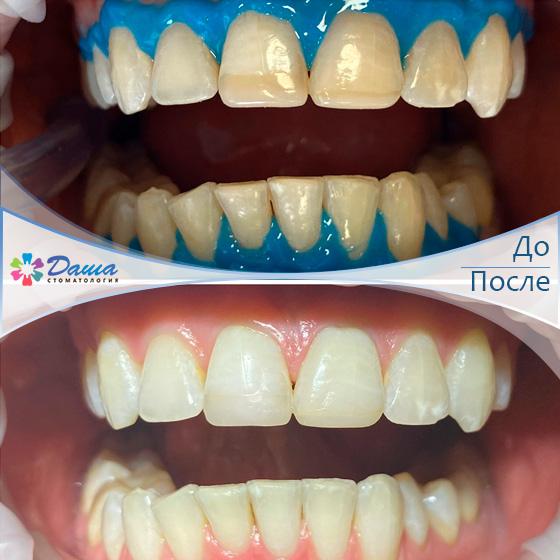 отбеливание зубов beyond в Волгограде в клинике ДАША