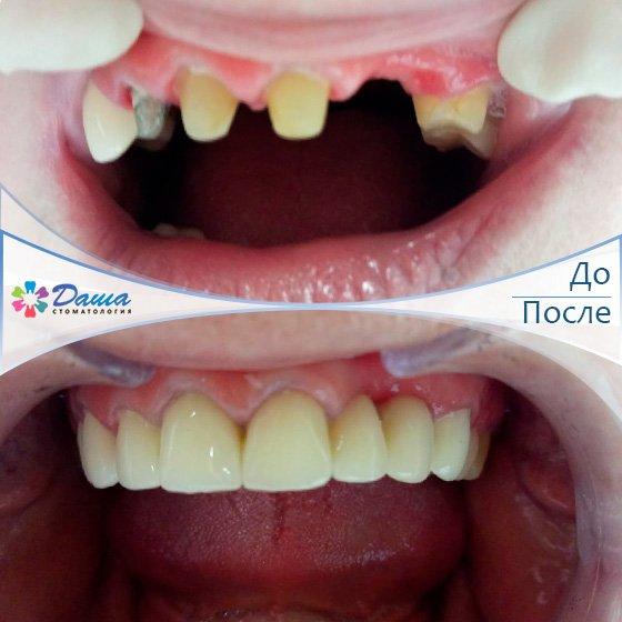 протезирование зубов металлокерамическими коронками в Волгограде в клинике ДАША