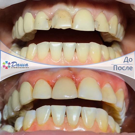 замена старых пломб, лечение вторичного кариеса и художественная реставрация зубов в Волгограде