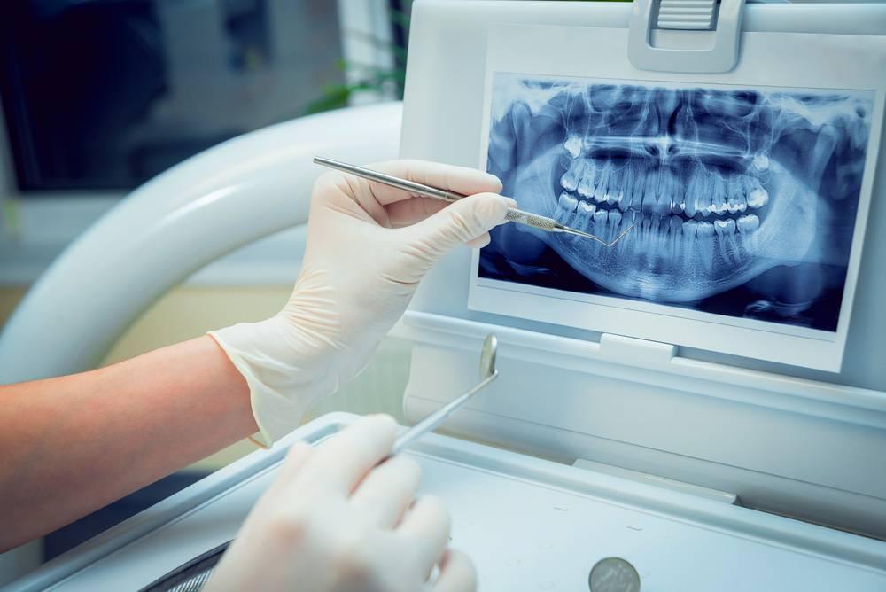 удаленная бесплатная консультация стоматолога