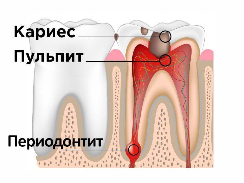 лечение пульпита и периодонтита в клинике даша в волгограде